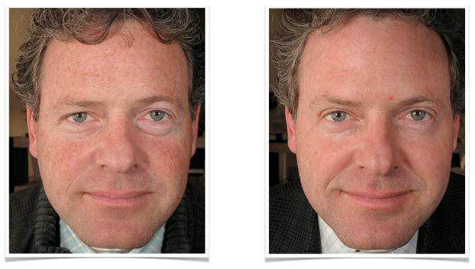 ejuvenecimiento-facial-laser