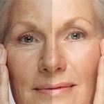Ácido hialurónico para tratar arrugas, bolsas y ojeras
