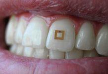 sensor sustancias dientes