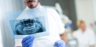 dentista-radiografia-bucal
