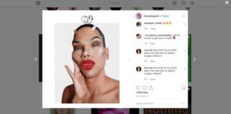Instagram filtros cirugías estéticas